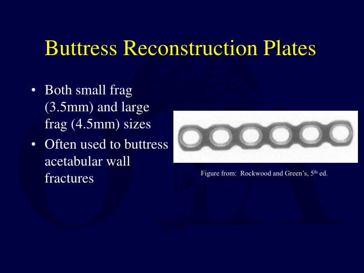 Buttress Reconstruction Plates