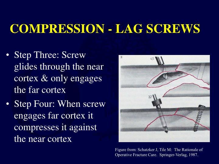 COMPRESSION - LAG SCREWS