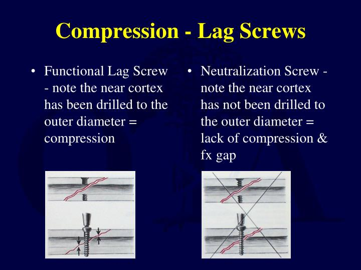 Functional Lag Screw - note the near cortex has been drilled to the outer diameter = compression