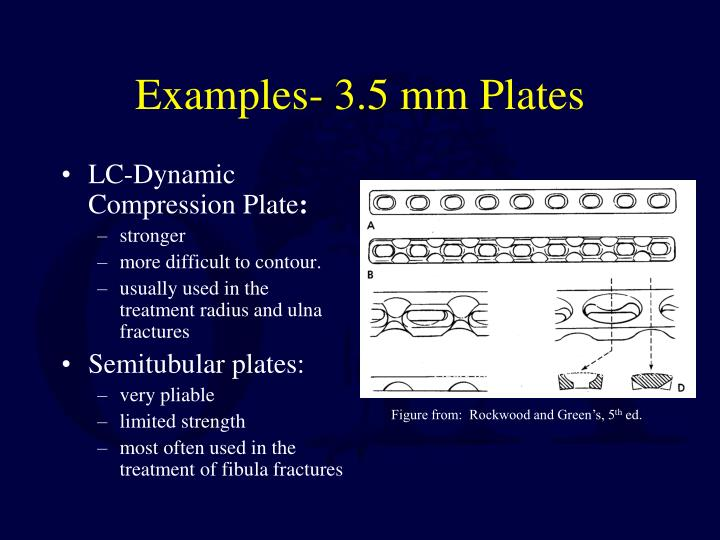 Examples- 3.5 mm Plates