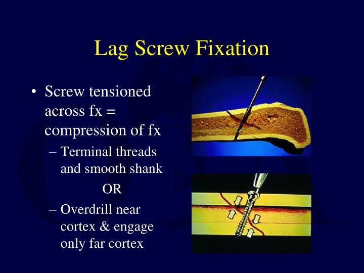 Lag Screw Fixation