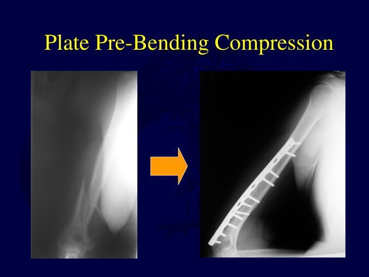 Plate Pre-Bending Compression