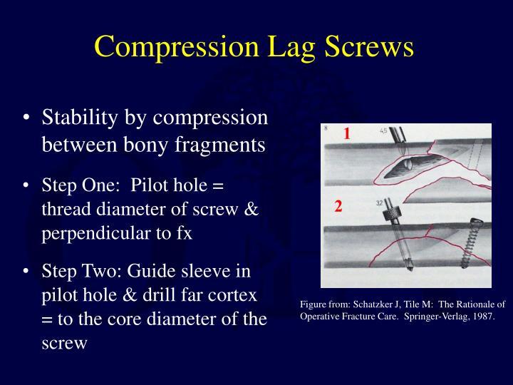 Compression Lag Screws