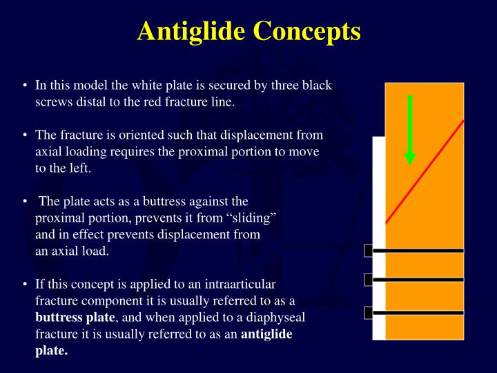 Antiglide Concepts