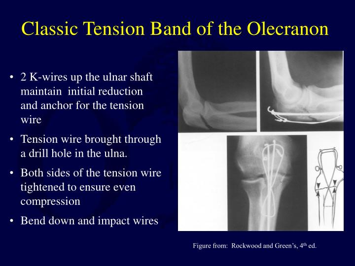 Classic Tension Band of the Olecranon