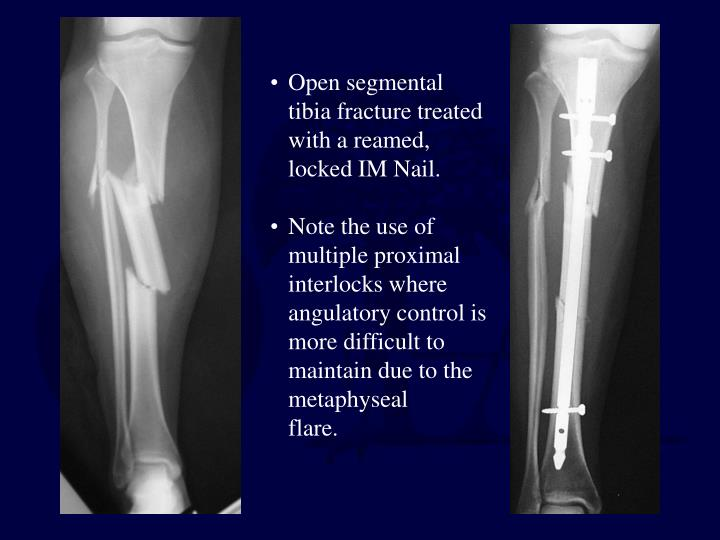 Open segmental tibia fracture treated with a reamed, locked IM Nail.