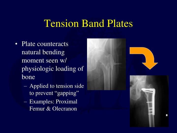 Tension Band Plates