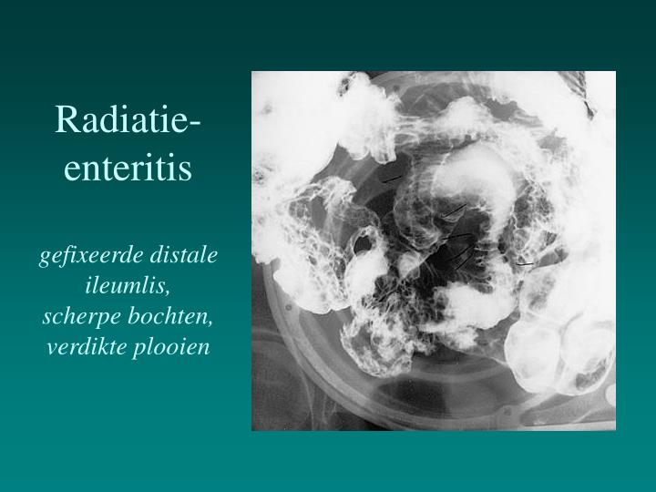 Radiatie-enteritis