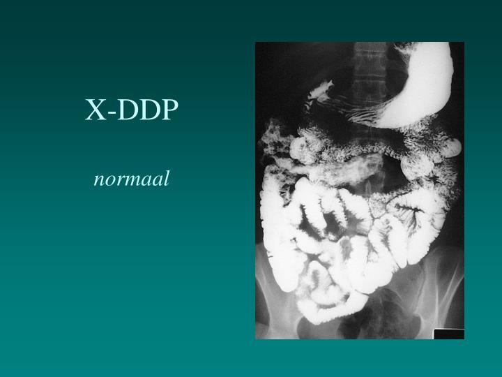 X-DDP