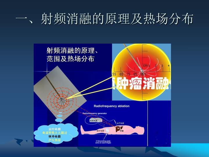 一、射频消融的原理及热场分布