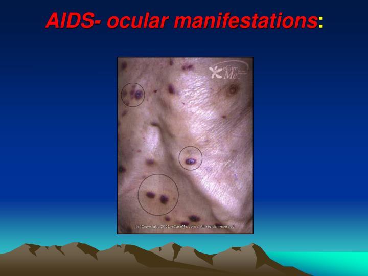 AIDS- ocular manifestations