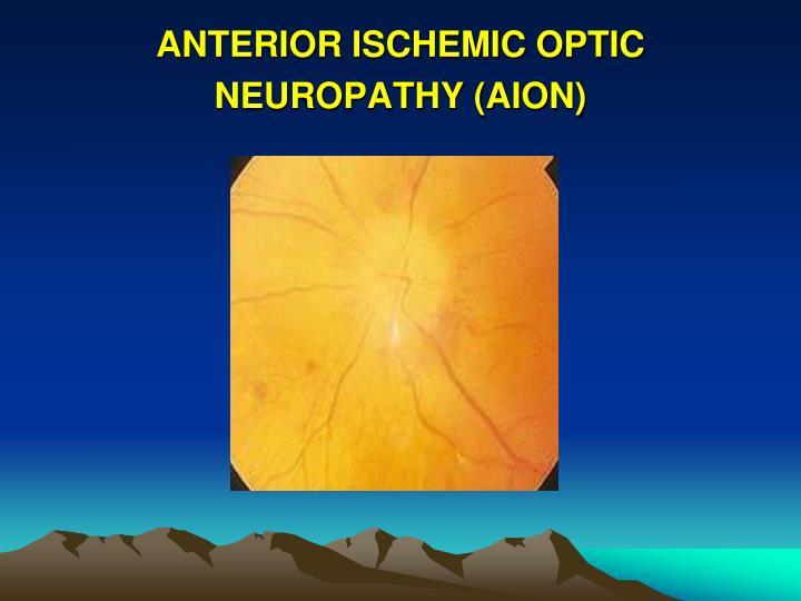 ANTERIOR ISCHEMIC OPTIC NEUROPATHY (AION)