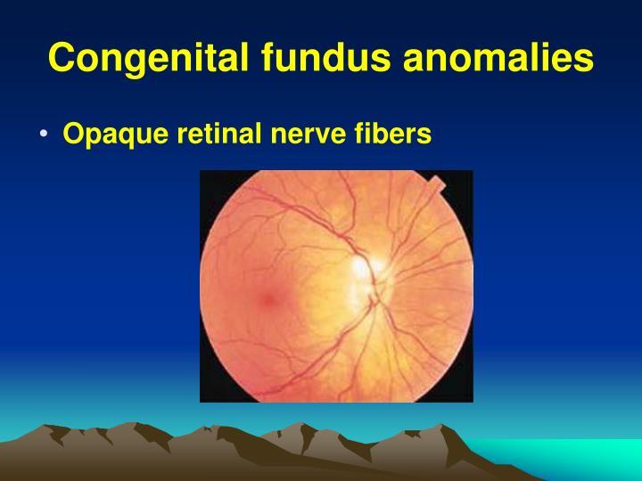 Congenital fundus anomalies