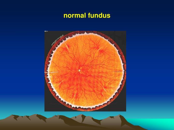 normal fundus