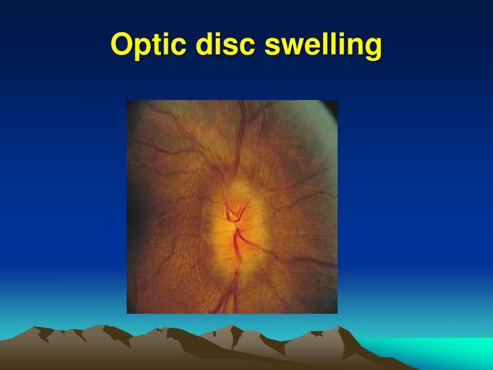 Optic disc swelling