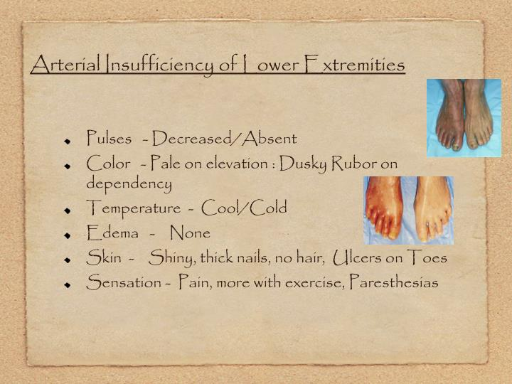 Arterial Insufficiency of Lower Extremities