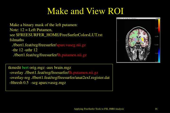 Make and View ROI