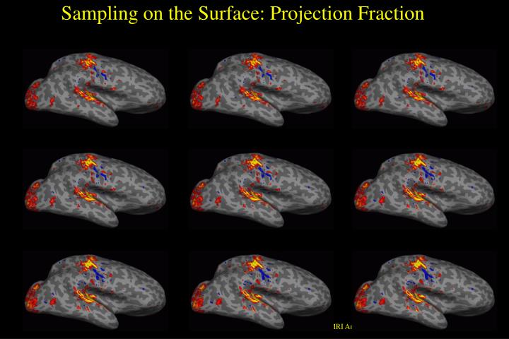 Sampling on the Surface: Projection Fraction