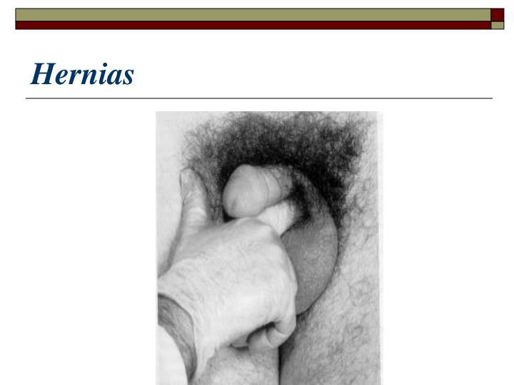 Hernias