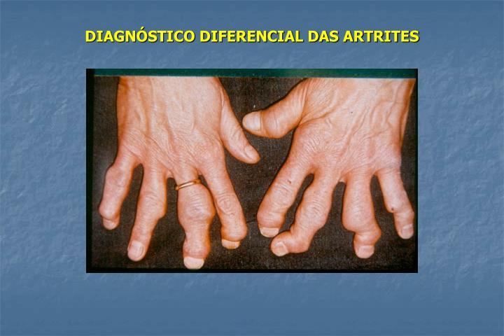 DIAGNÓSTICO DIFERENCIAL DAS ARTRITES