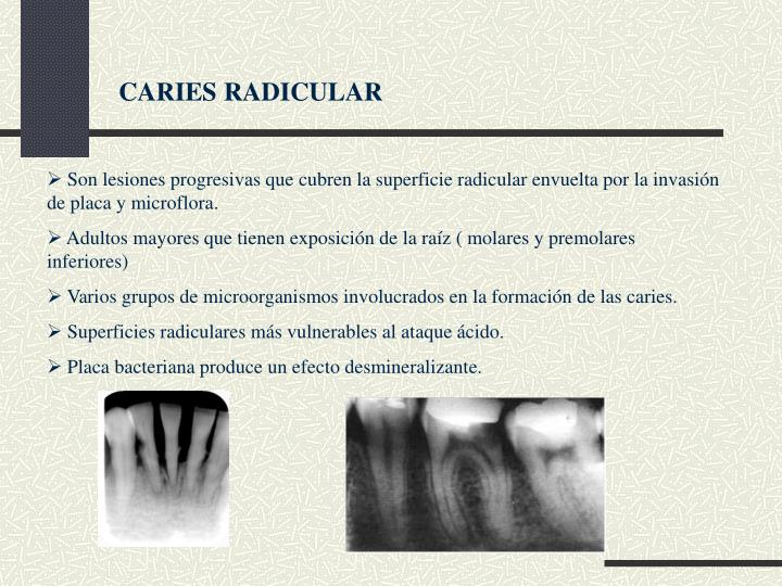 CARIES RADICULAR