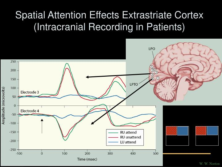 Spatial Attention Effects Extrastriate Cortex (Intracranial Recording in Patients)