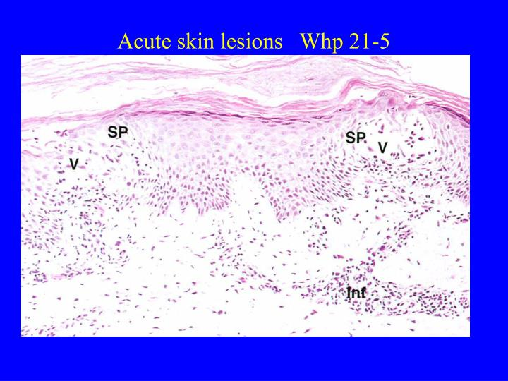 Acute skin lesions   Whp 21-5