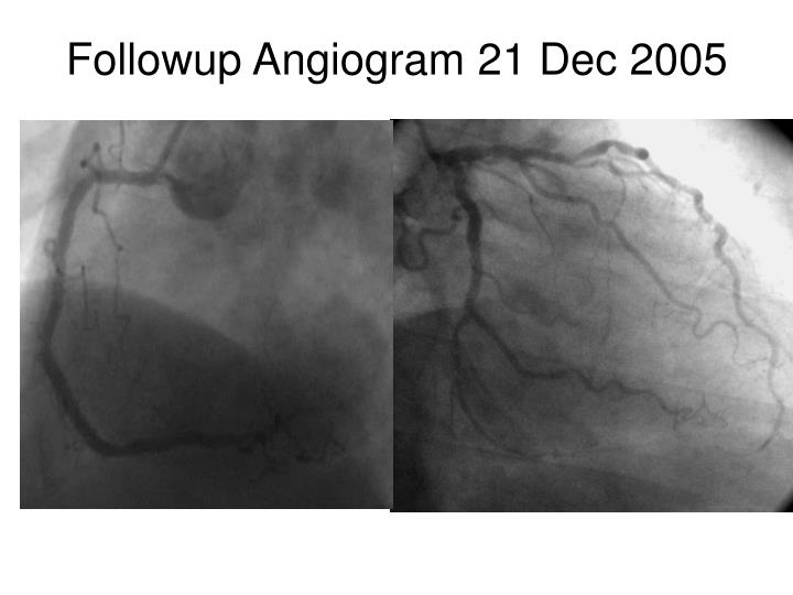 Followup Angiogram 21 Dec 2005