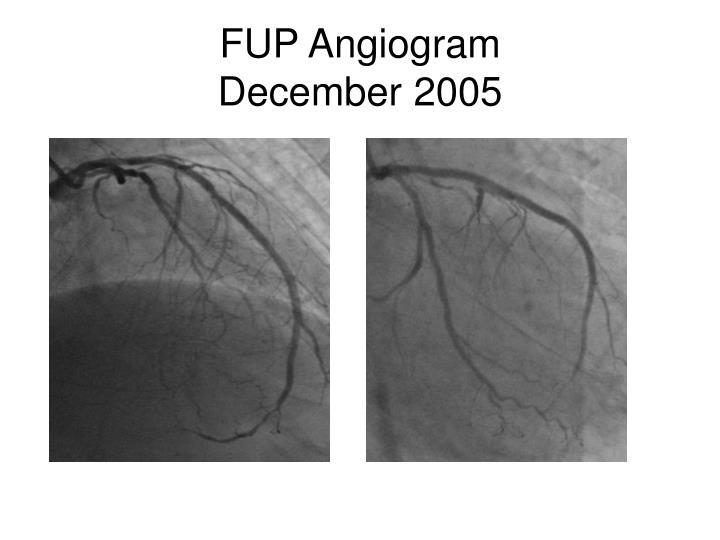 FUP Angiogram