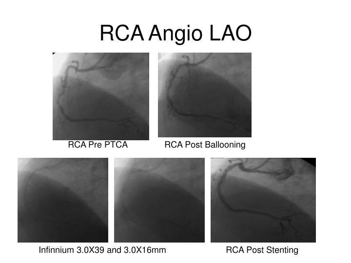 RCA Angio LAO