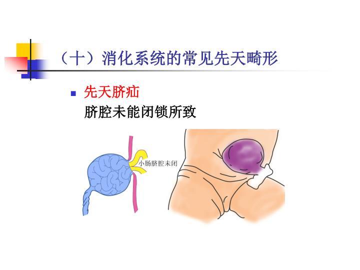 (十)消化系统的常见先天畸形