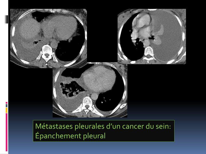 Métastases pleurales d'un cancer du sein: