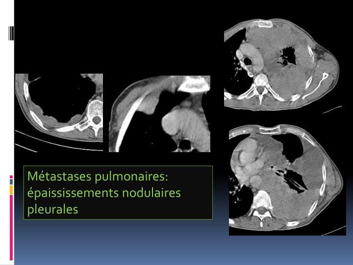 Métastases pulmonaires: épaississements nodulaires pleurales