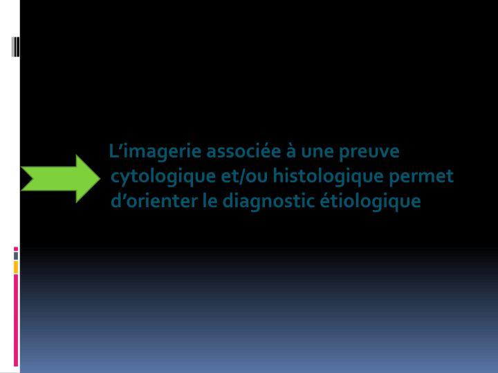 L'imagerie associée à une preuve cytologique et/ou histologique permet d'orienter le diagnostic étiologique