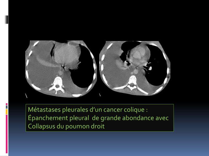 Métastases pleurales d'un cancer colique :