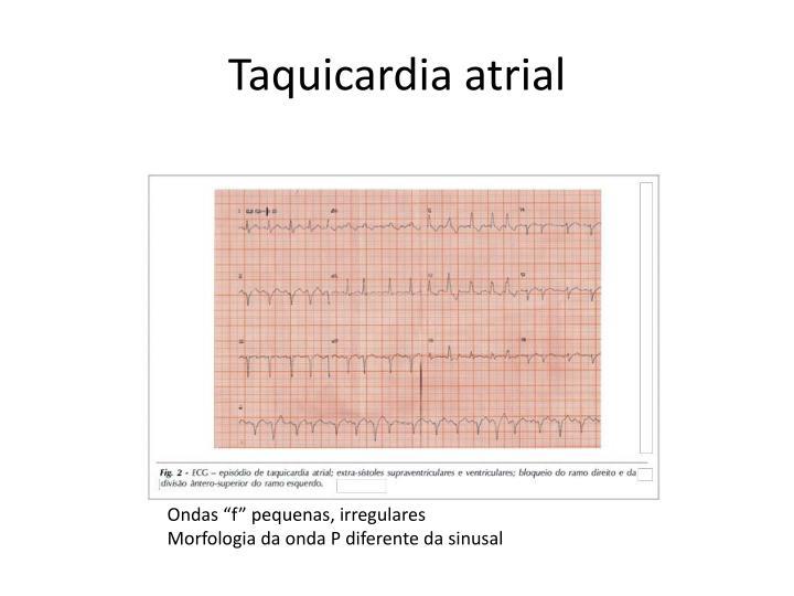 Taquicardia atrial