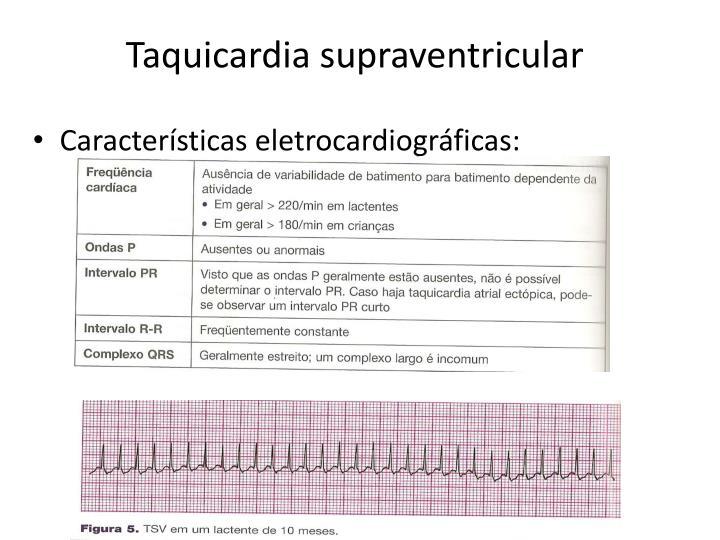 Taquicardia supraventricular