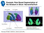 example rule based segmentation of the striatum in slicer harvard gatech1