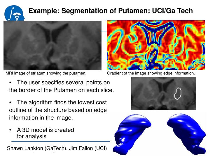 Example: Segmentation of Putamen: UCI/Ga Tech