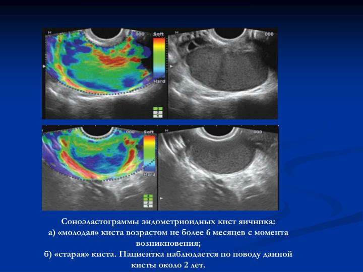 PPT - Роль соноэластографии в дифференциальной диагностике заболеваний яичников PowerPoint Presentation - ID:5720349
