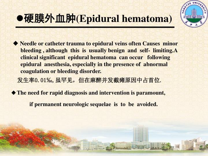 硬膜外血肿
