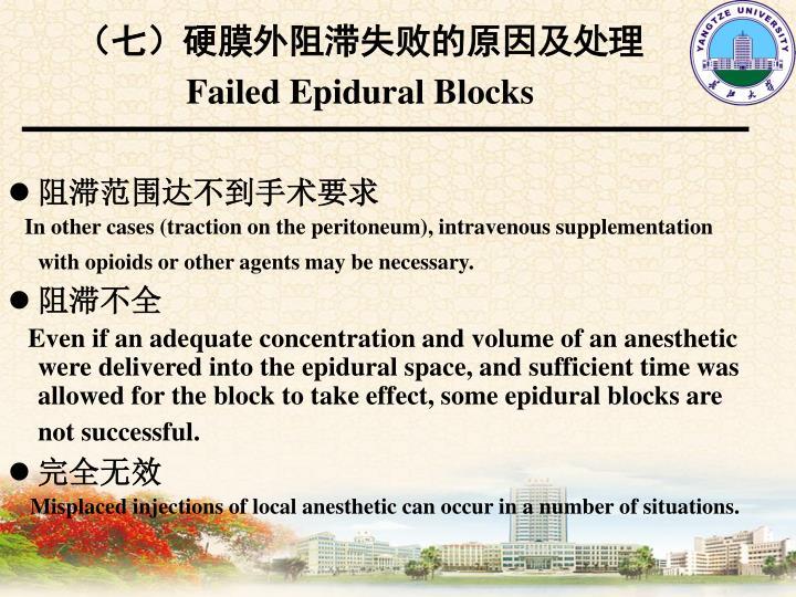 (七)硬膜外阻滞失败的原因及处理