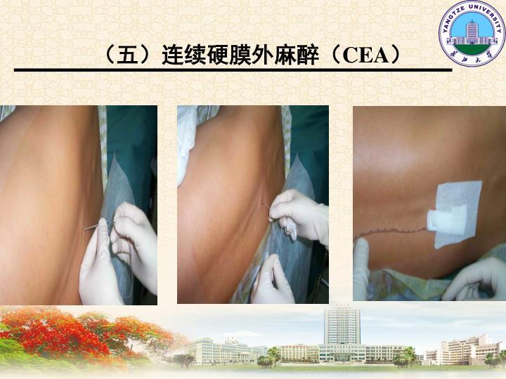 (五)连续硬膜外麻醉