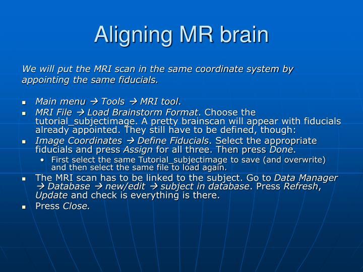 Aligning MR brain