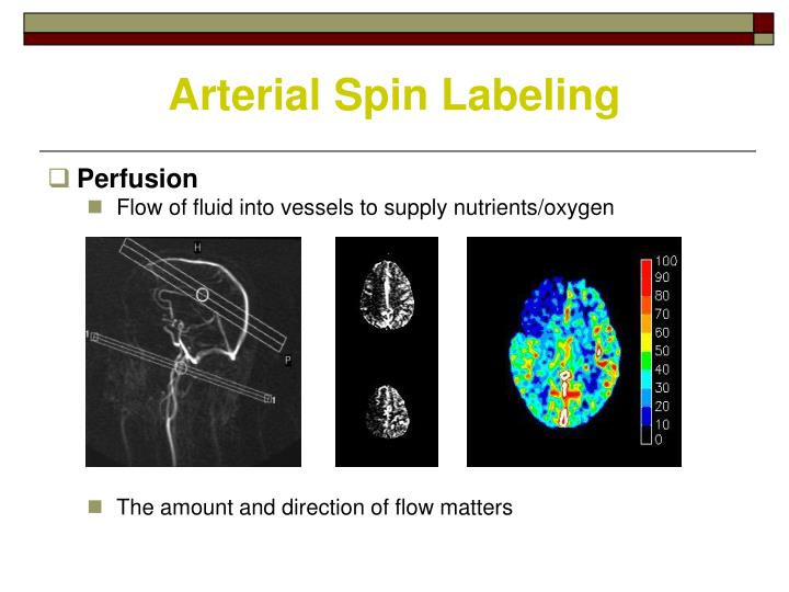 Arterial Spin Labeling