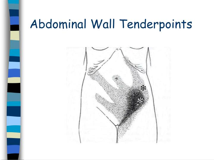 Abdominal Wall Tenderpoints