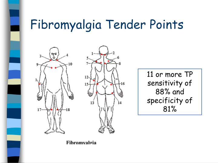 Fibromyalgia Tender Points