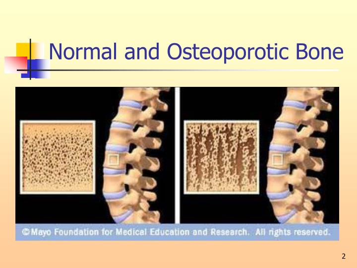 Normal and osteoporotic bone