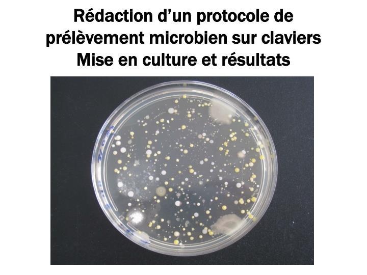 Rédaction d'un protocole de prélèvement microbien sur claviers