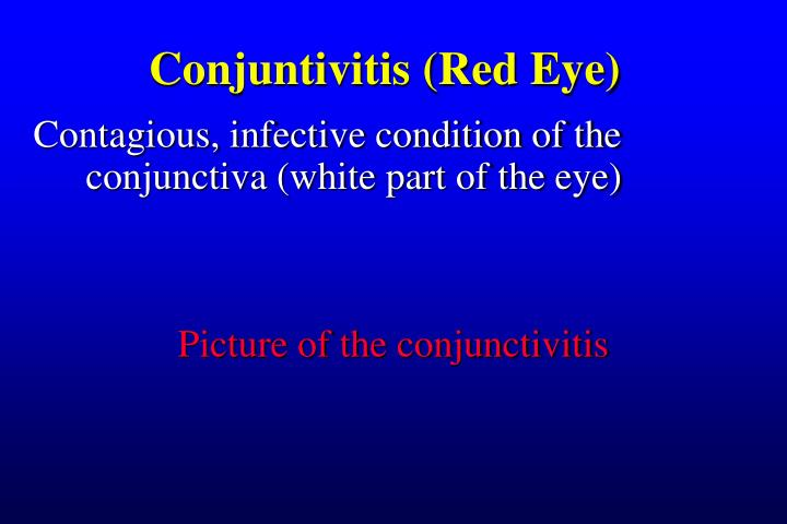 Conjuntivitis (Red Eye)